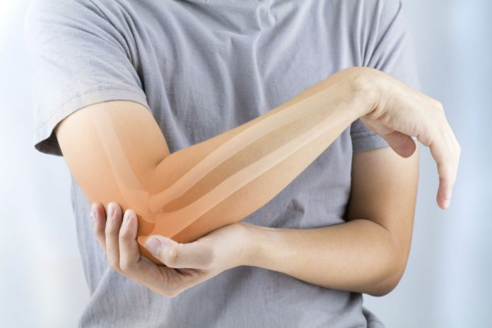 Co powinienes wiedziec o osteoporozie
